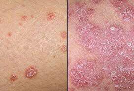 فیزیوتراپی در بیماریهای پوستی