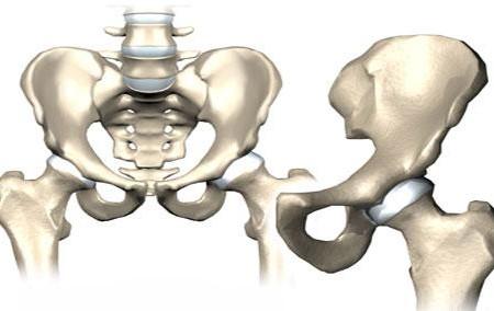 فیزیوتراپی مفصل لگن - فیزیوتراپی بعد از تعویض مفصل لگن
