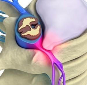 درمان دیسک گردن با فیزیوتراپی دیسک گردن